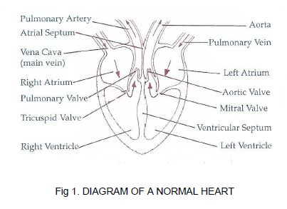 The heart soft ireland diagram of a normal heart ccuart Choice Image